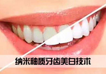 北京牙齒美白培訓-納米釉質牙齒美白技術